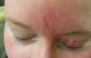Inch-long laceration on my forehead.